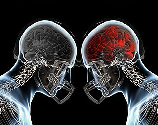 commotion cérébrale