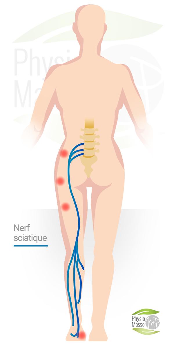 nerf sciatique sciatalgie